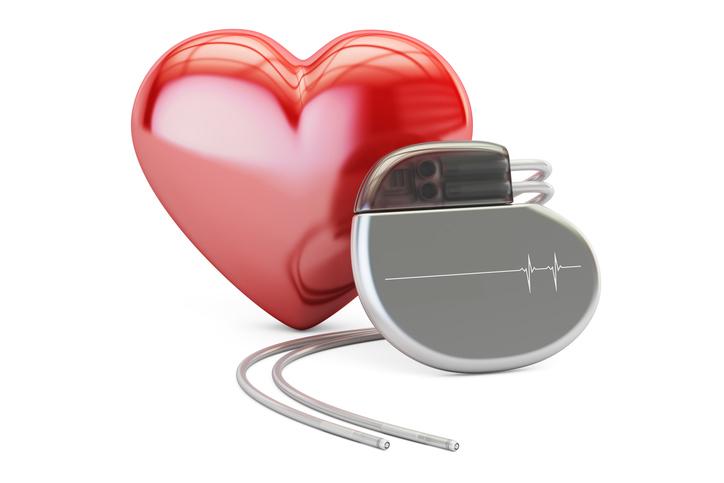 Cos'è e come funziona un pacemaker?